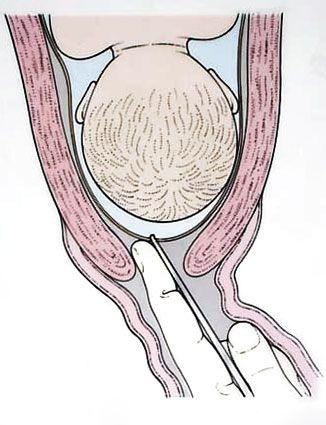 amnitomia paritorio