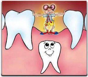 dentición_003