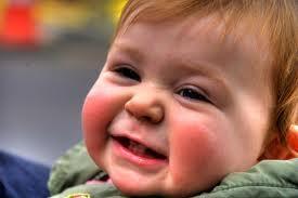 la dermatitis atópica en bebés
