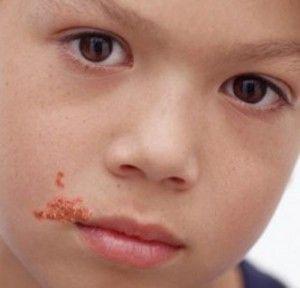 picor y heridas en piel