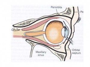 nuestro hijo tienen celulitis periorbitaria